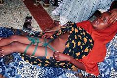 Mutilación de una niña - Foto LDD