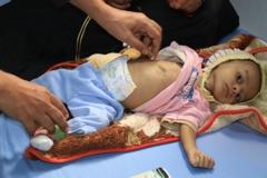 Bebé de Yemén