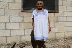 Honduras elimina el principal transmisor de la enfermedad de Chagas
