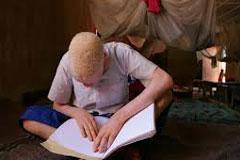 El albinismo y la batalla contra la discriminación que lleva a cabo la ONU