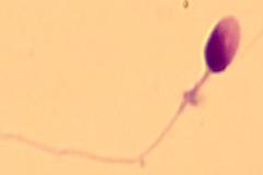 Universidad de Ginebra da resultado de una investigación científica:  El semen suizo es de mala calidad